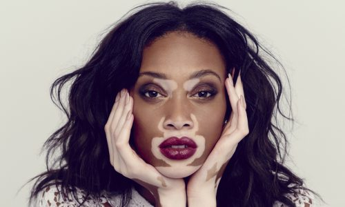 Vitiligo Is A VERY Difficult Problem!