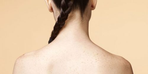 Tips To Treating Acne On Your Back