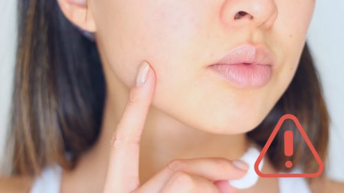 Simple Solutions To Treating Acne