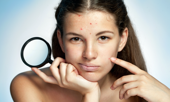 New Study Reveals Teens With Acne More Likely To Think Of Suicide