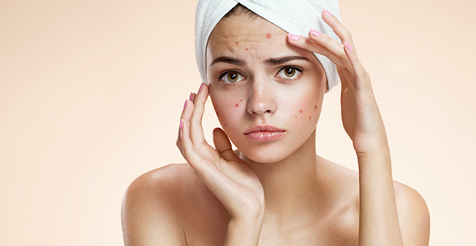 Expert Tips For Cloaking Those Zits
