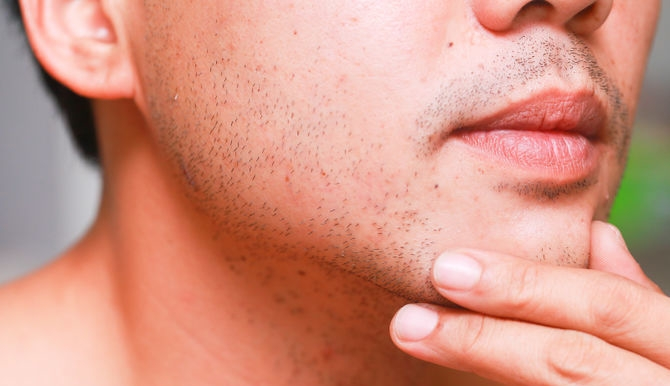 how-to-prevent-razor-rash-after-shaving_1