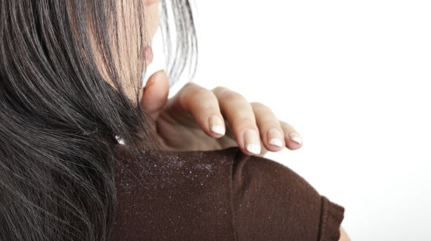 Moisturize Your Head With A Gentle Shampoo To Get Rid Of Dandruff