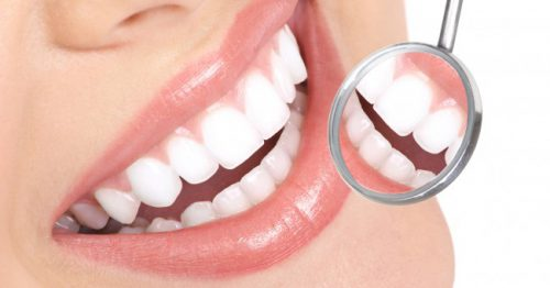 Keeping Your Teeth Bright And Stain-Free
