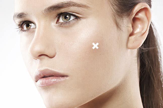 Why You Might Not Want To Spot-Treat Blemishes