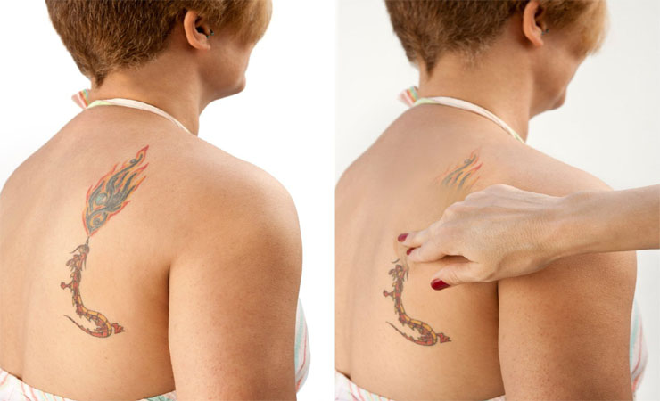 How To Cover Tattoos In 3 Easy Steps
