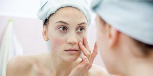 How To Fix Skin That's Blotchy From The Hot Weather