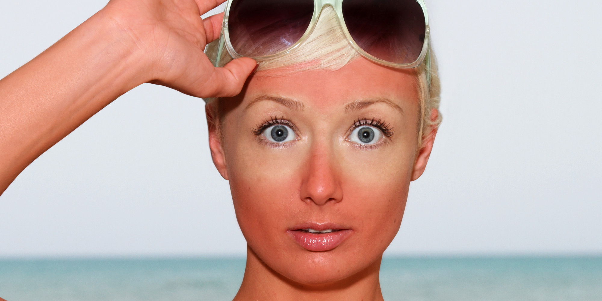 Do You Know How To Hide A Sunburn With Your Makeup?