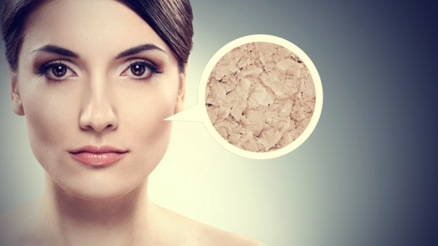 3 Top Reasons Why You Might Have Dry Skin