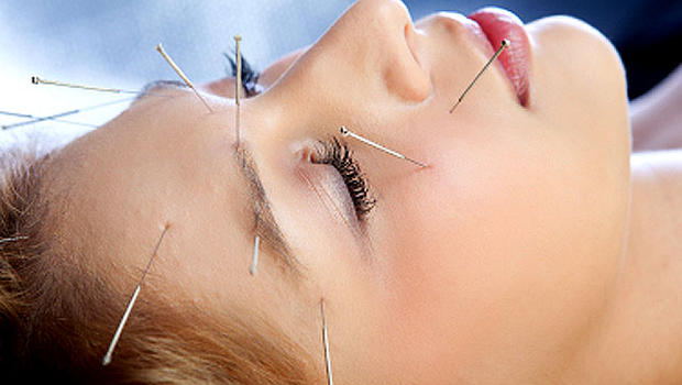 beatuy benefits of acupuncture